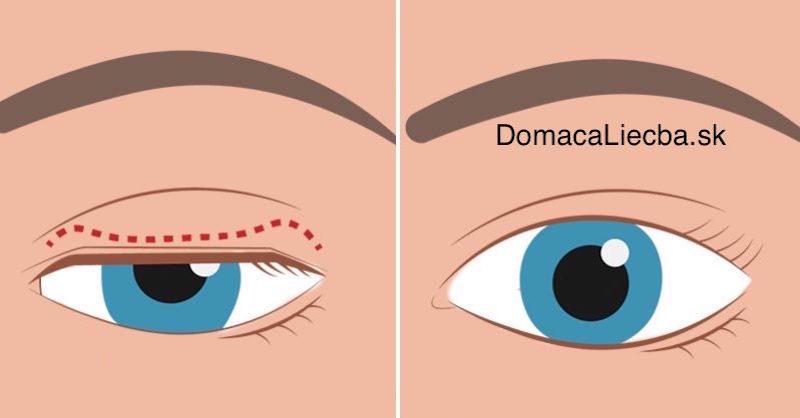 Odstráňte ovisnuté očné viečka, omlaďte svoj vzhľad a vylepšite zrak
