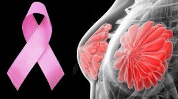 9 najlepších potravín na prevenciu rakoviny prsníka