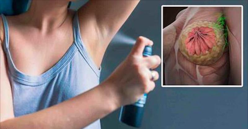 Robte týchto 10 vecí apredídete až 90% prípadov rakoviny prsníka