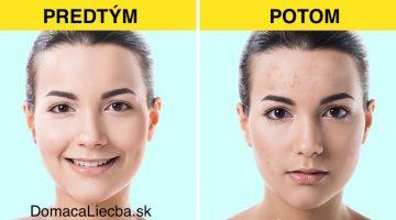 6 druhov kozmetiky, ktoré dermatológovia pridali na čierny zoznam