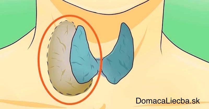 Lekári to skrývajú: Naučte sa vyliečiť štítnu žľazu prírodne