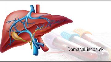 Čo vypovedajú zvýšené pečeňové testy o vašom zdraví