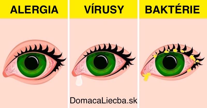 Ako vyliečiť zápal očných spojiviek doma prírodným spôsobom
