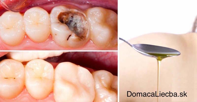 Robte tieto 4 veci azbavte sa zubného kazu prírodným spôsobom