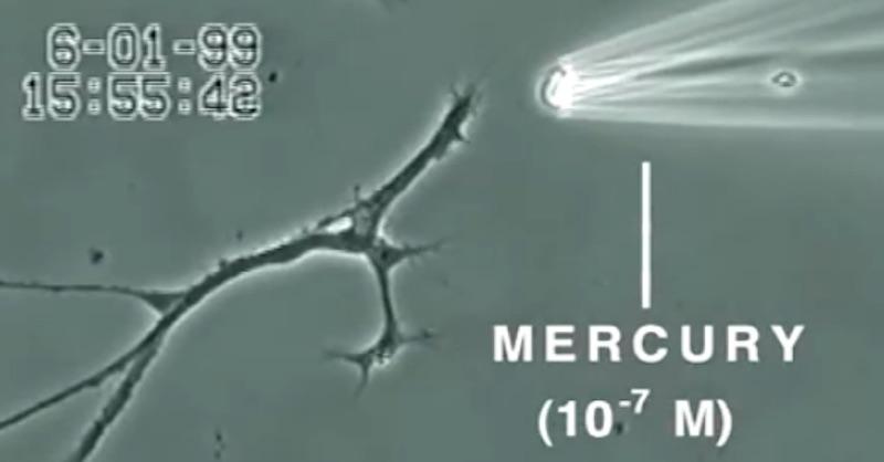 Video ukazuje, čo spraví ortuť smozgovými neurónmi za iba 20 minút